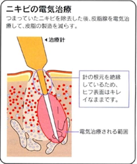 京都でにきび治療なら皮膚科岡田佳子医院へ